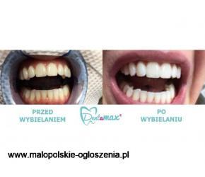 Profesjonalne Wybielanie Zębów - bezpieczne dla szkliwa - Dentamax Kraków